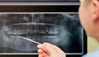 Herziene richtlijn Radiologie: De belangrijkste punten voor dossiervoering