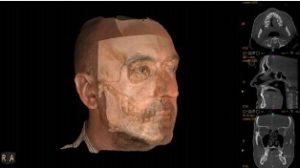 3D Facial Scanning