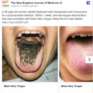 Haargroei op tong na antibiotica bij 55-jarige vrouw