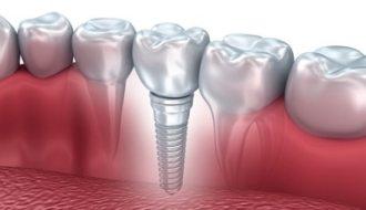 Implantaatgedragen kroon- en brugwerk: een goede behandeloptie voor patiënten met ernstige hypodontie