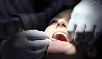 Beter begrip van beweging tanden