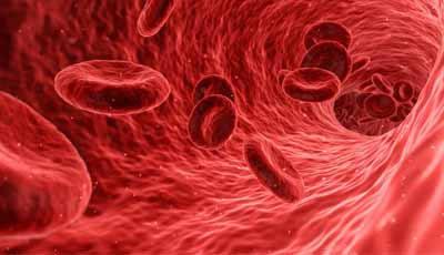 Behandeling parodontitis helpt controleren van bloedglucose bij patiënten met diabetes type 2