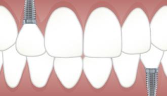 Brug of implantaat? Een dagelijks dilemma