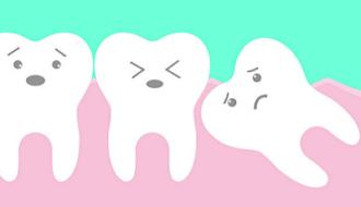 Derde molaren: verwijderen of niet?