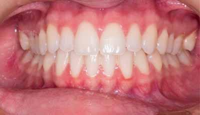 Gamma-delta-T cellen beschermen tegen parodontitis