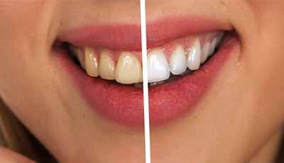 Bleekstrips kunnen dentine aantasten