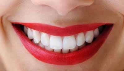 Cosmetische tandheelkunde is booming door beroemdheden
