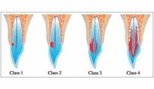 Externe cervicale resorptie (ECR)