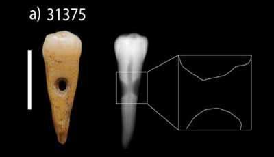 Neolithische mensen maakten juwelen van menselijke tanden