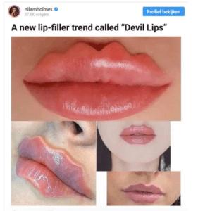 devillips