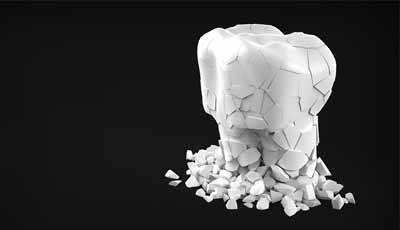 Gespleten tand