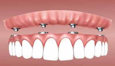 Implantaatgedragen overkappingsprothese voor alle ouderen of alleen voor de gezonde ouderen