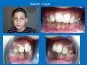 Casus-3-Hussain-10-jaar