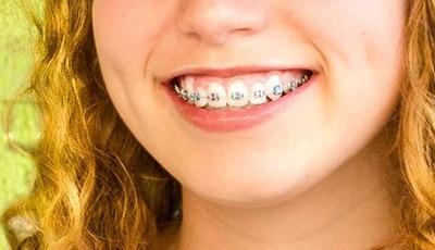 NOS Stories: Zijn al die beugels écht nodig? : De waarheid over rechte tanden