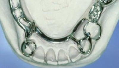 frameprothese